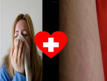 alergia al propoleo
