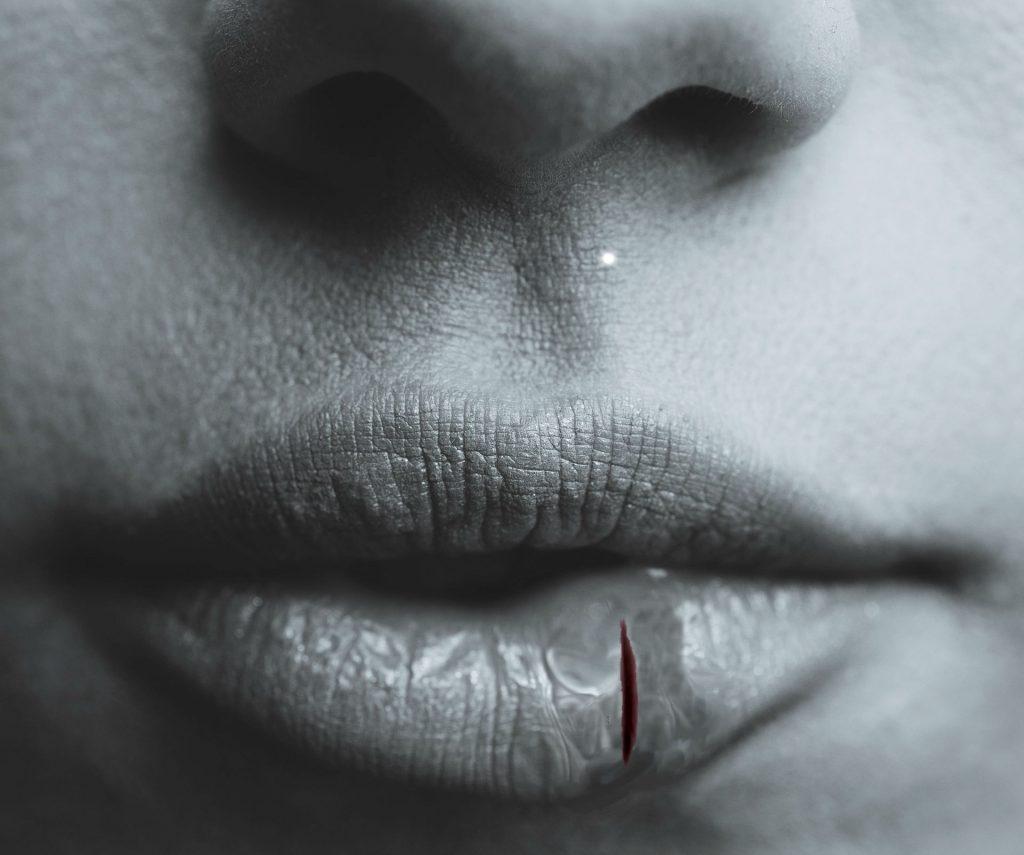 herida en el labio que no cicatriza