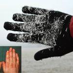 manos agrietadas que sangran
