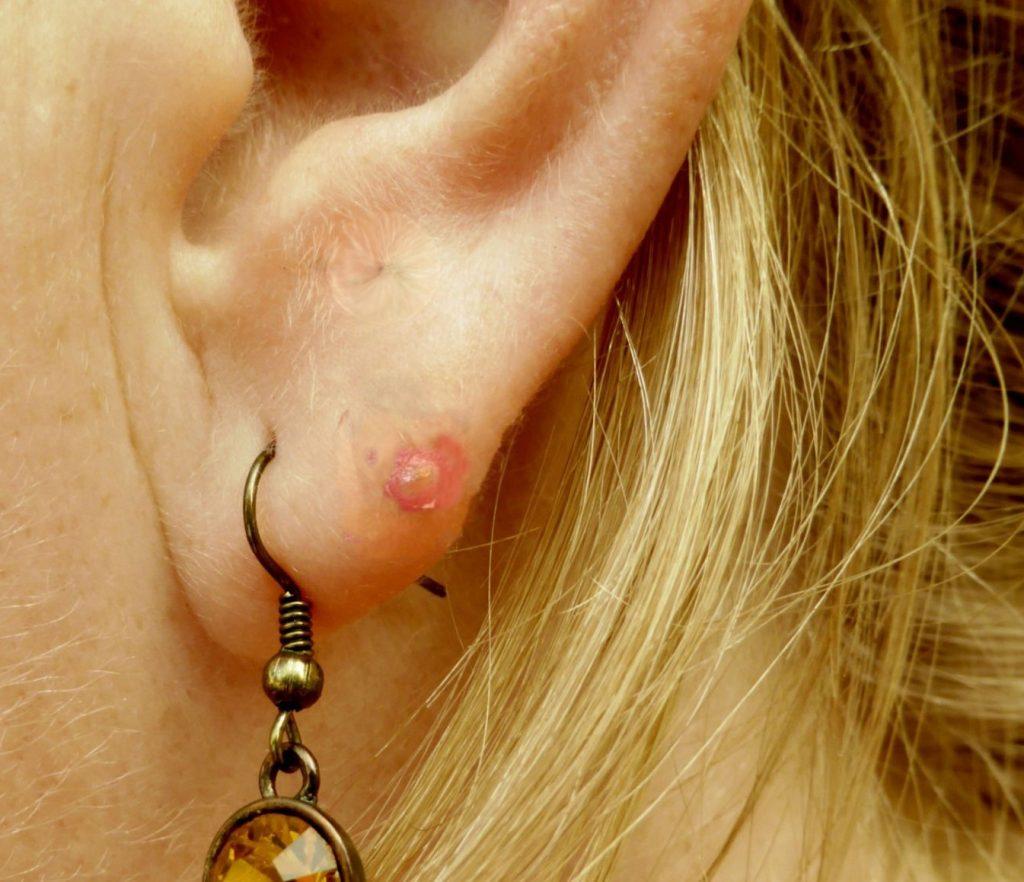 espinillas en las orejas